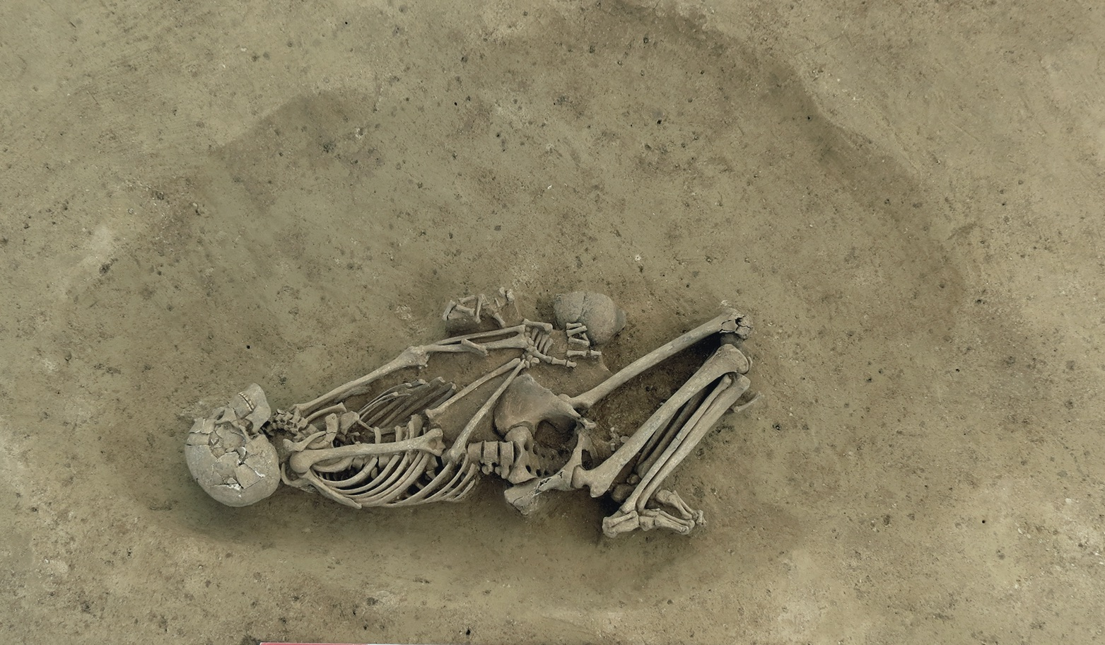 Early Neolithic burial from Alsace (Morschwiller-le-Bas  Ungeheuer Hoelzle, Haut-Rhin)